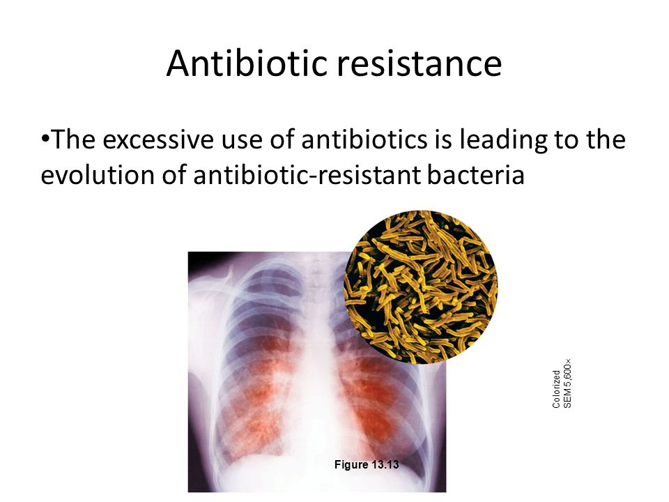 Antibiotic resistance The excessive use of antibiotics is leading to the evolution of antibiotic-resistant bacteria Colorized SEM 5,600  Figure 13.13