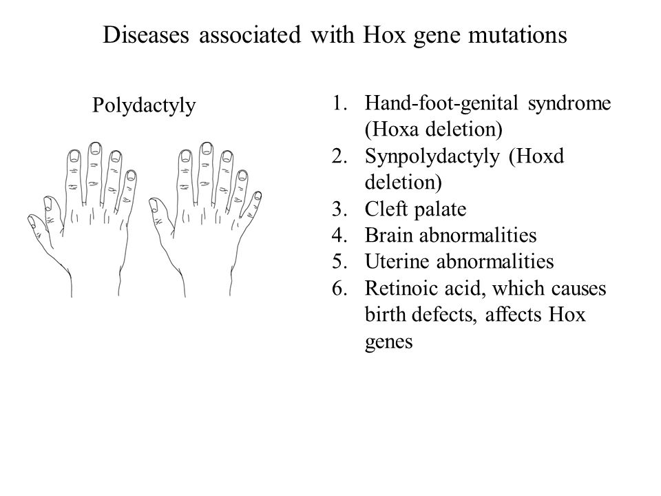 Polydactyly Diseases associated with Hox gene mutations 1.Hand-foot-genital syndrome (Hoxa deletion) 2.Synpolydactyly (Hoxd deletion) 3.Cleft palate 4.Brain abnormalities 5.Uterine abnormalities 6.Retinoic acid, which causes birth defects, affects Hox genes