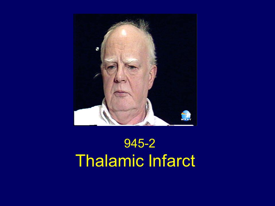 945-2 Thalamic Infarct