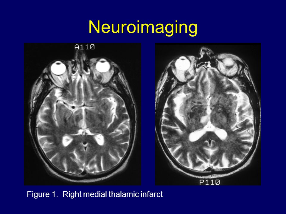 Neuroimaging Figure 1. Right medial thalamic infarct