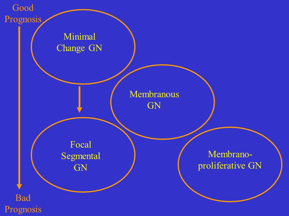 Minimal Change GN Focal Segmental GN Membranous GN Membrano- proliferative GN Good Prognosis Bad Prognosis