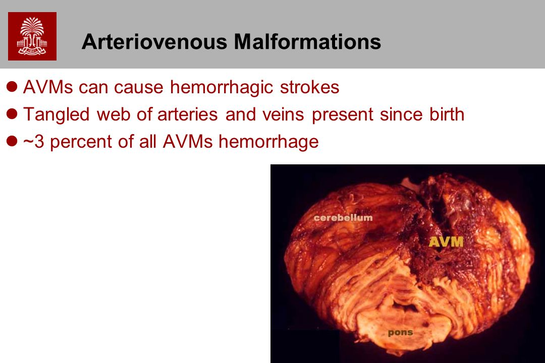 25 Arteriovenous Malformations AVMs can cause hemorrhagic strokes Tangled web of arteries and veins present since birth ~3 percent of all AVMs hemorrhage