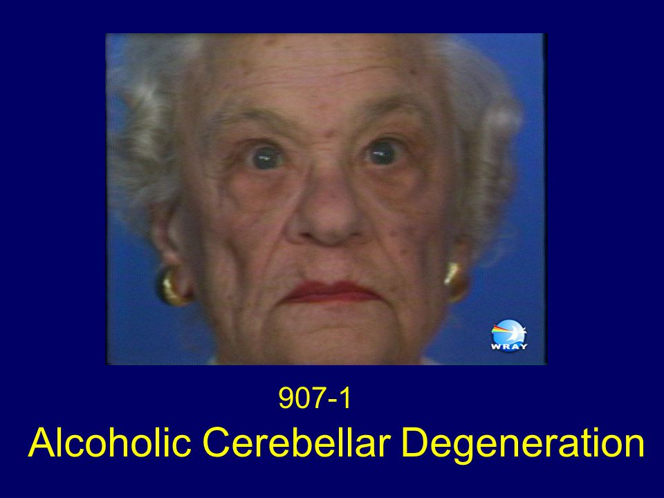Alcoholic Cerebellar Degeneration 907-1