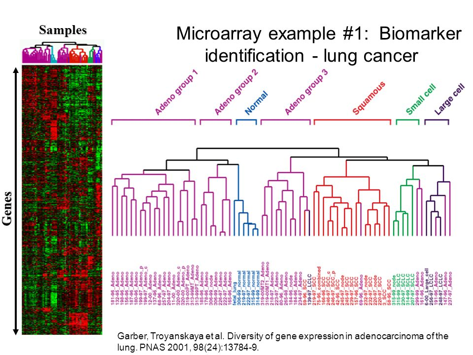 Microarray example #1: Biomarker identification - lung cancer Samples Genes Garber, Troyanskaya et al.