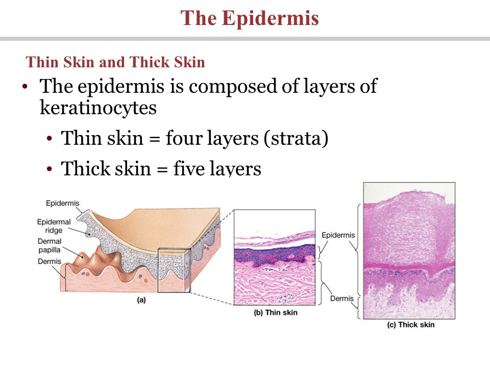 The epidermis is composed of layers of keratinocytes Thin skin = four layers (strata) Thick skin = five layers The Epidermis Thin Skin and Thick Skin