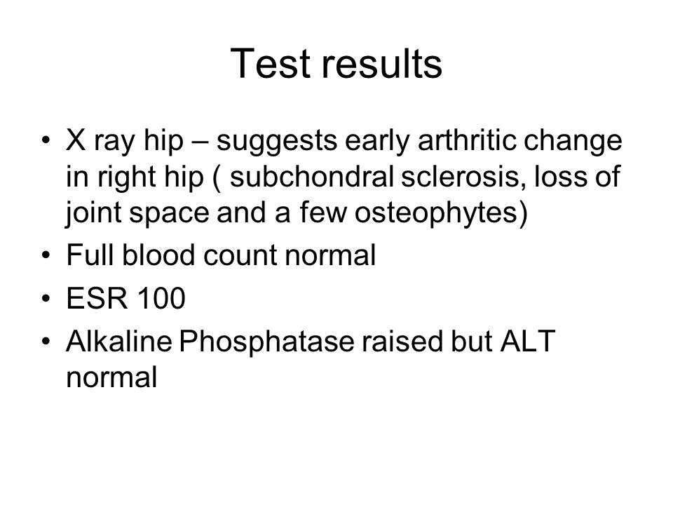 Test results X ray hip – suggests early arthritic change in right hip ( subchondral sclerosis, loss of joint space and a few osteophytes) Full blood count normal ESR 100 Alkaline Phosphatase raised but ALT normal