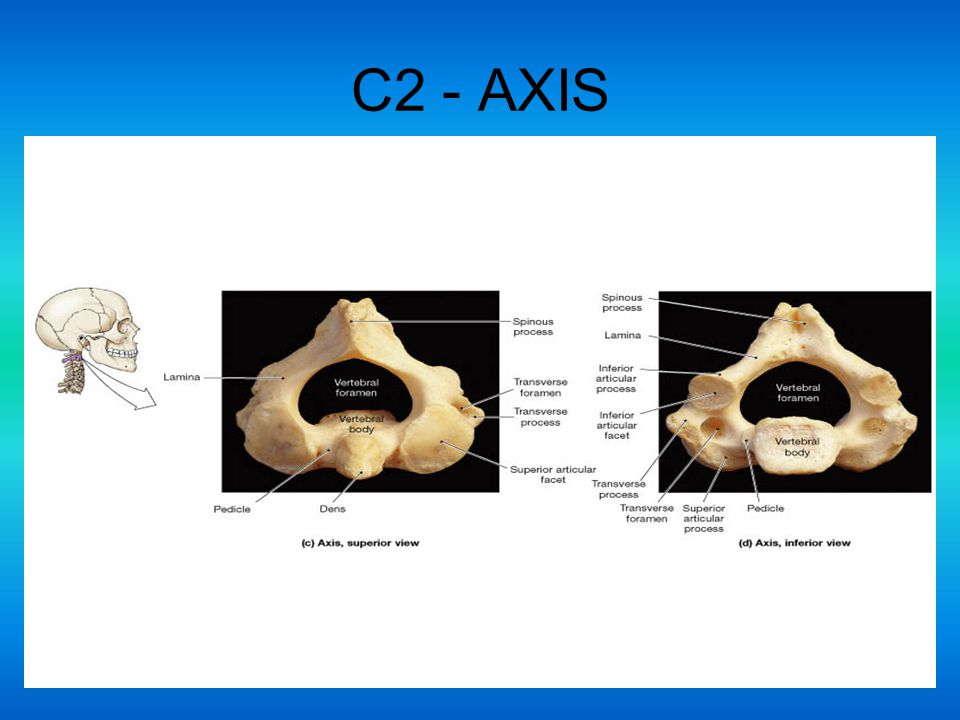 C2 - AXIS