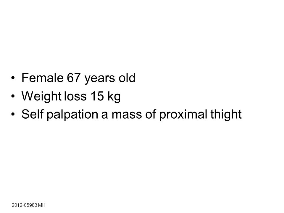 Female 67 years old Weight loss 15 kg Self palpation a mass of proximal thight MH