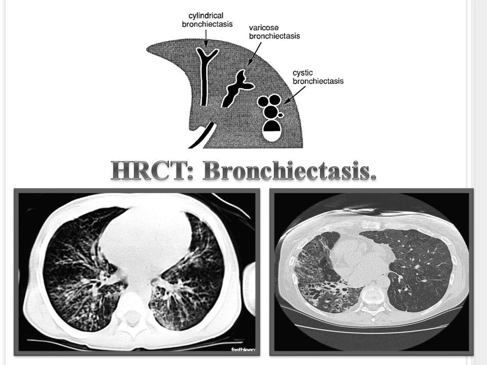 bronchiolitis obliterans ct