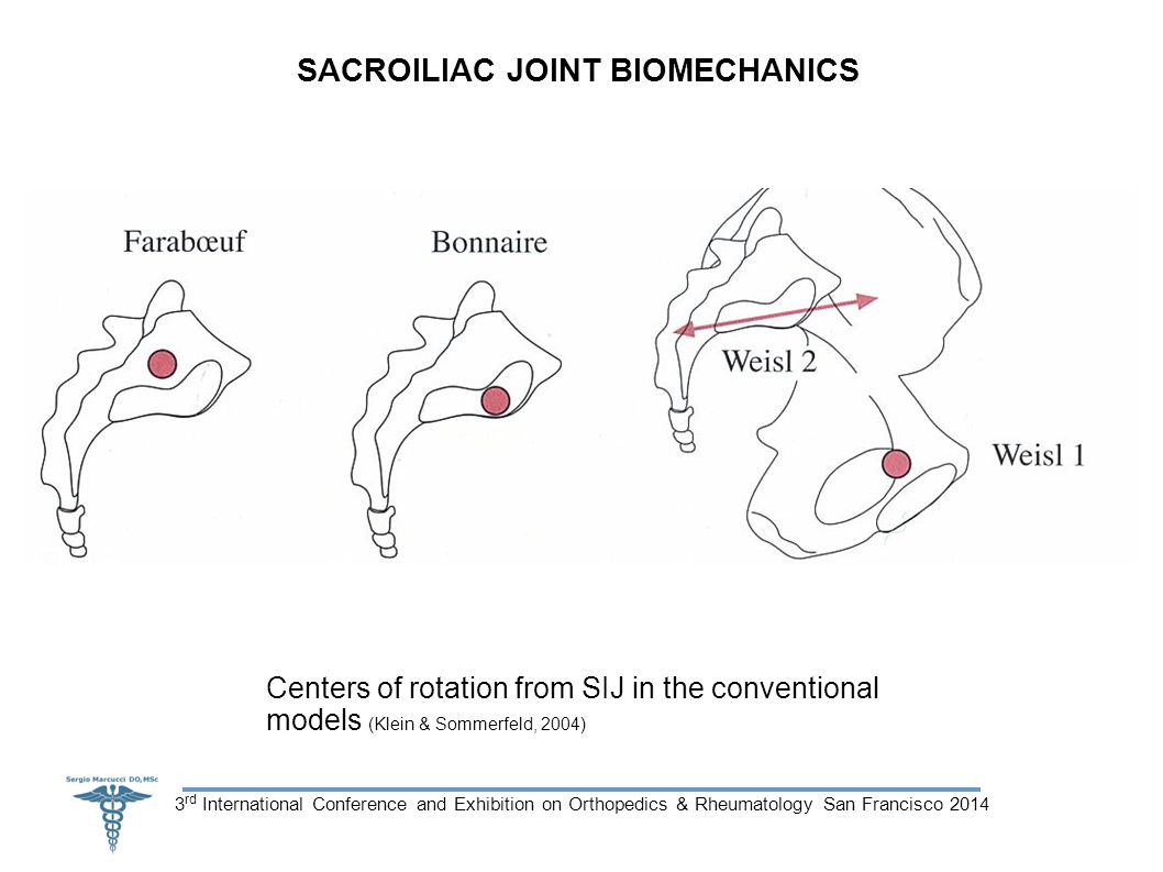 3 rd International Conference and Exhibition on Orthopedics & Rheumatology San Francisco 2014 SACROILIAC JOINT BIOMECHANICS Centers of rotation from SIJ in the conventional models (Klein & Sommerfeld, 2004)