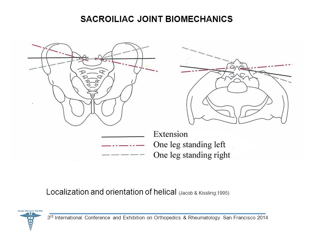 3 rd International Conference and Exhibition on Orthopedics & Rheumatology San Francisco 2014 SACROILIAC JOINT BIOMECHANICS Localization and orientation of helical (Jacob & Kissling,1995)
