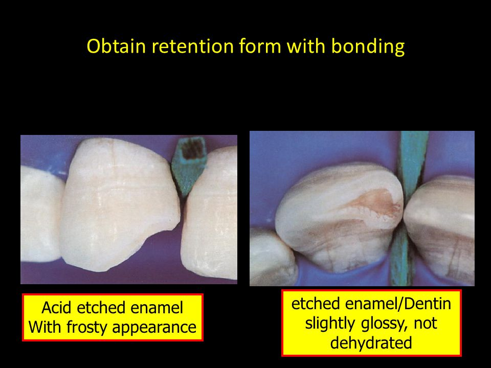 Obtain retention form with bonding Acid etched enamel With frosty appearance etched enamel/Dentin slightly glossy, not dehydrated