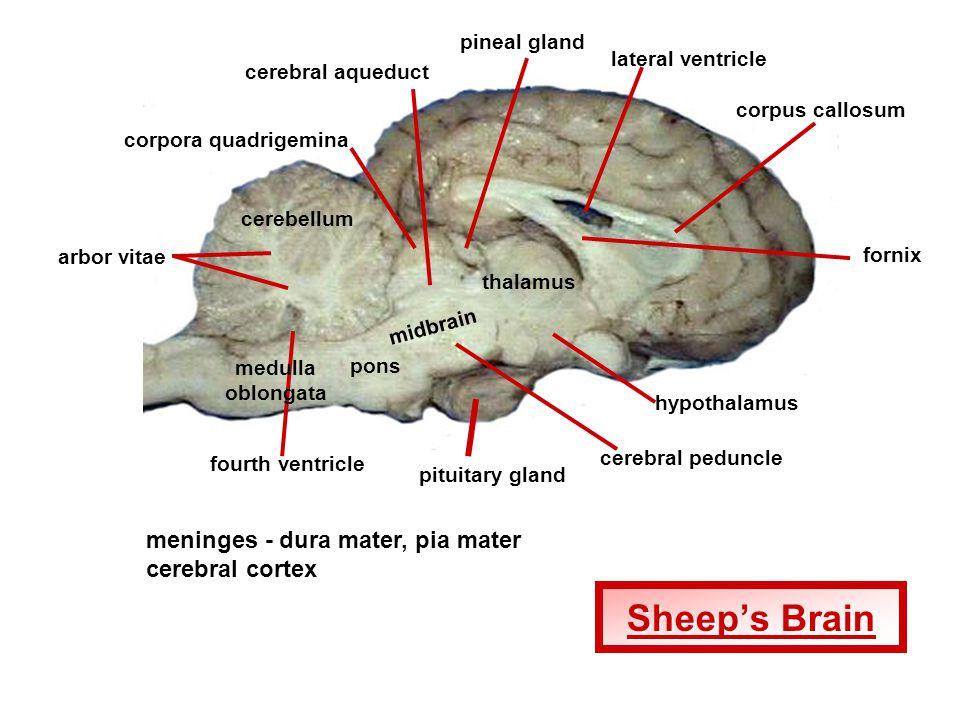 Arbor Vitae Brain