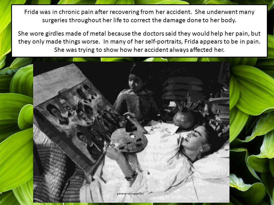 Frida was in chronic pain after recovering from her accident.