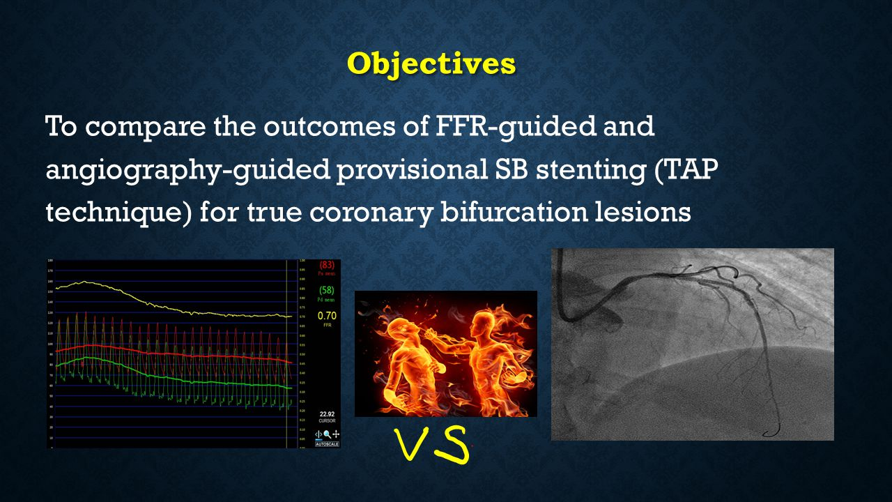 Objectives To compare the outcomes of FFR-guided and angiography-guided provisional SB stenting (TAP technique) for true coronary bifurcation lesions