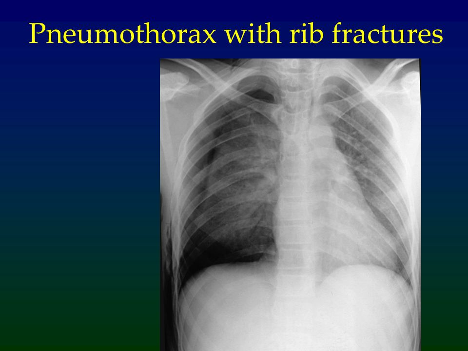 Pneumothorax with rib fractures