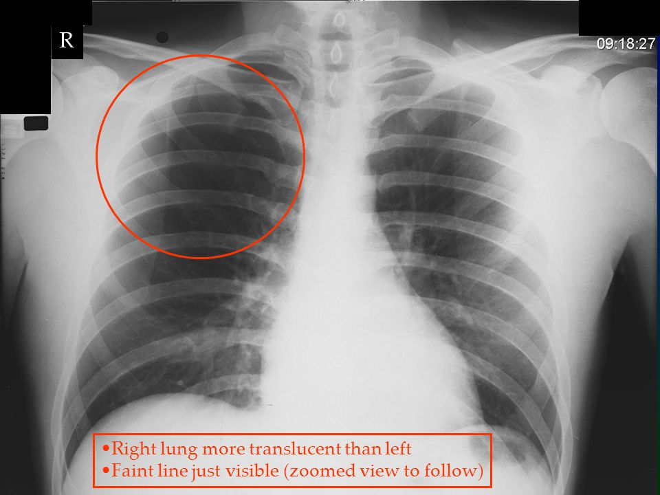 R Right lung more translucent than left Faint line just visible (zoomed view to follow)