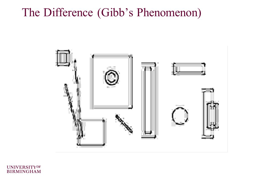 The Difference (Gibb's Phenomenon)