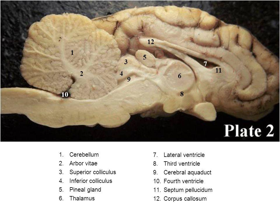 1.Cerebellum 2.Arbor vitae 3.Superior colliculus 4.Inferior colliculus 5.Pineal gland 6.Thalamus 7.
