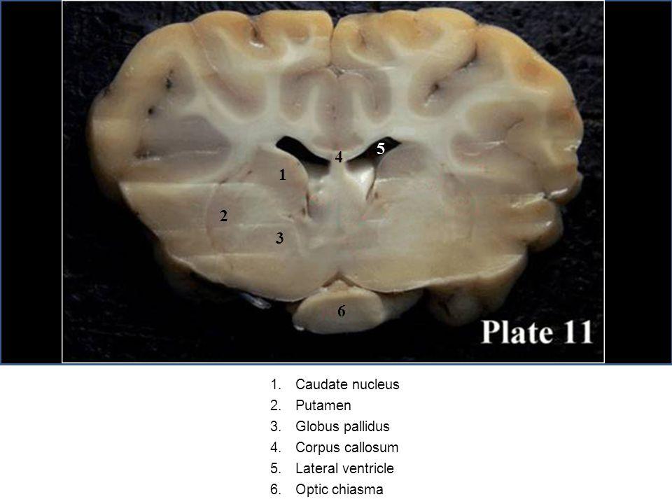 1.Caudate nucleus 2.Putamen 3.Globus pallidus 4.Corpus callosum 5.Lateral ventricle 6.Optic chiasma 1 2 3 4 5 6