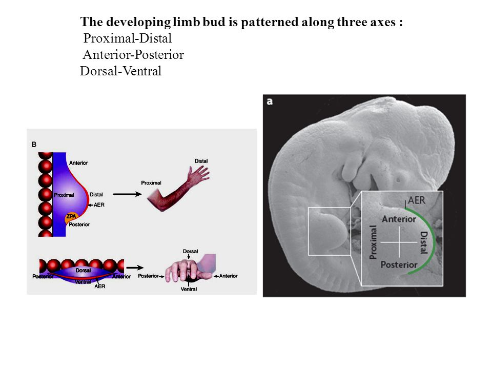 The developing limb bud is patterned along three axes : Proximal-Distal Anterior-Posterior Dorsal-Ventral