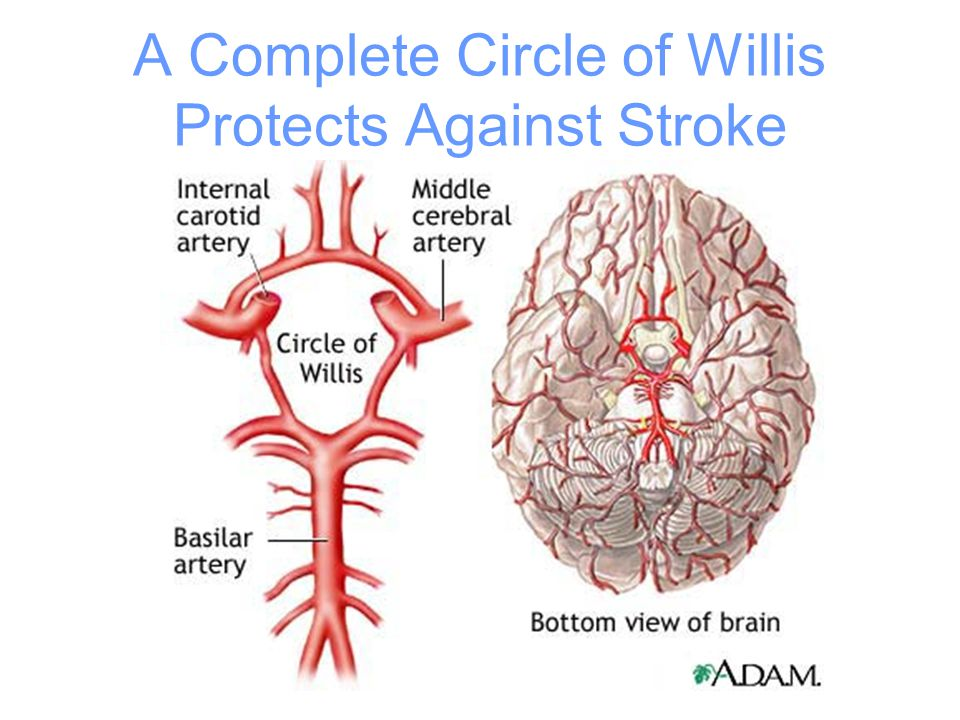 A Complete Circle of Willis Protects Against Stroke