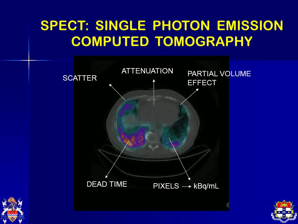 SPECT: SINGLE PHOTON EMISSION COMPUTED TOMOGRAPHY SCATTER ATTENUATION PARTIAL VOLUME EFFECT DEAD TIME PIXELS kBq/mL