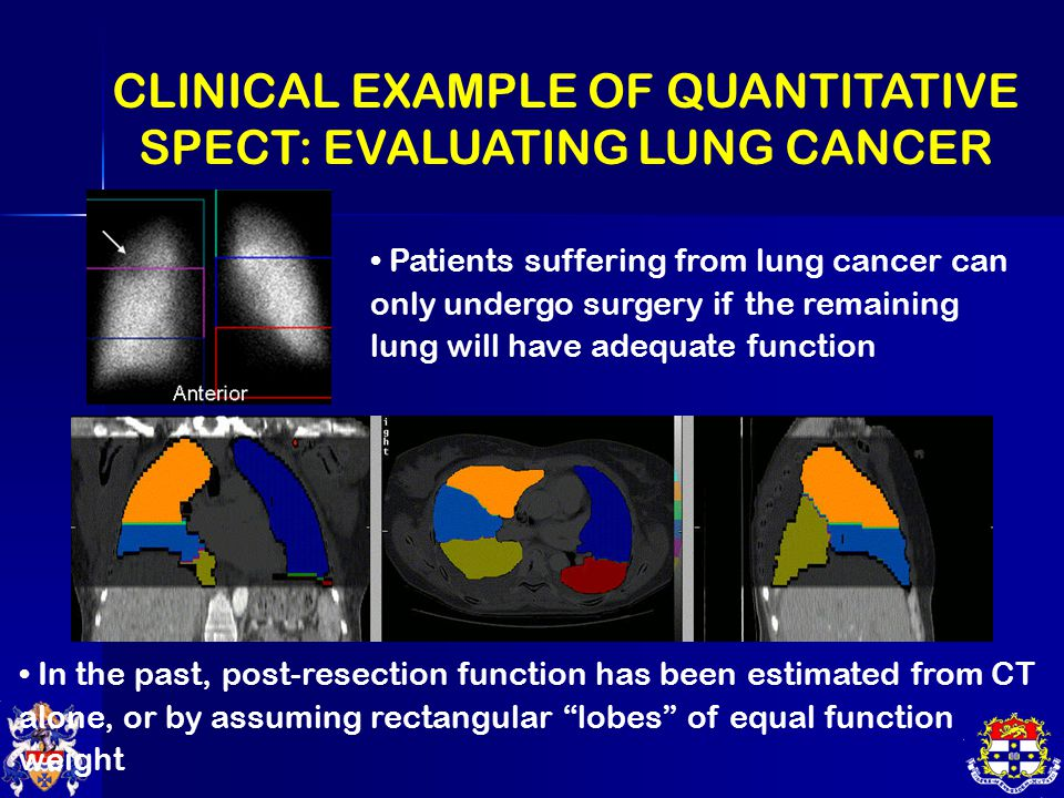 CLINICAL EXAMPLE OF QUANTITATIVE SPECT: EVALUATING LUNG CANCER Patients suffering from lung cancer can only undergo surgery if the remaining lung will have adequate function In the past, post-resection function has been estimated from CT alone, or by assuming rectangular lobes of equal function weight