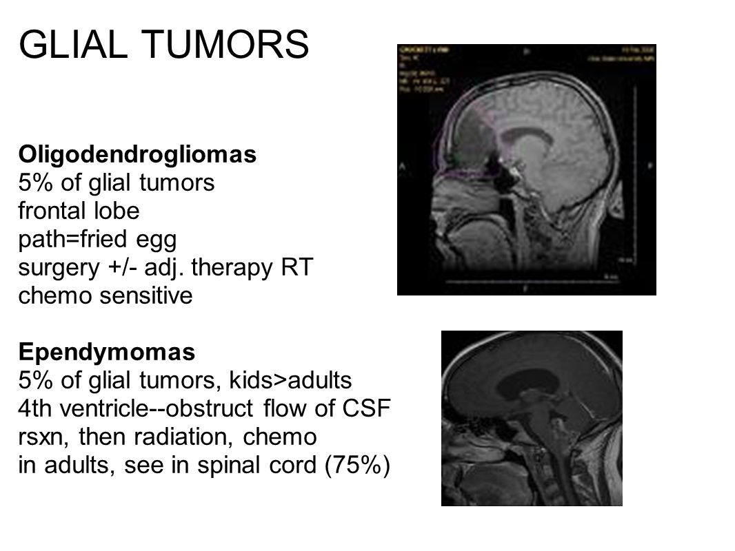 GLIAL TUMORS Oligodendrogliomas 5% of glial tumors frontal lobe path=fried egg surgery +/- adj.