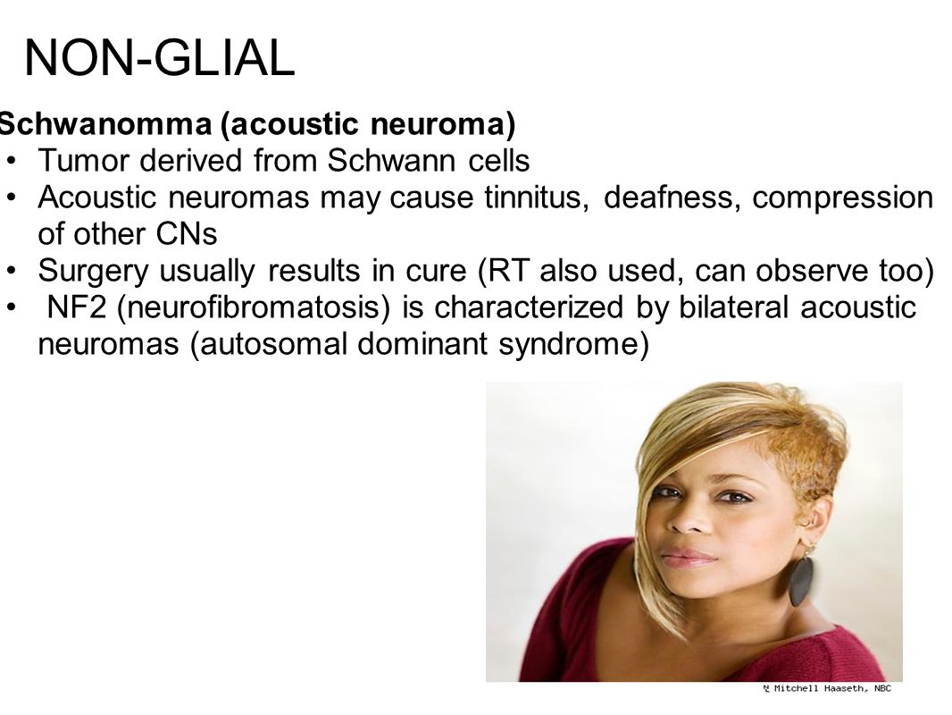 NON-GLIAL Schwanomma (acoustic neuroma) Tumor derived from Schwann cells Acoustic neuromas may cause tinnitus, deafness, compression of other CNs Surgery usually results in cure (RT also used, can observe too) NF2 (neurofibromatosis) is characterized by bilateral acoustic neuromas (autosomal dominant syndrome)