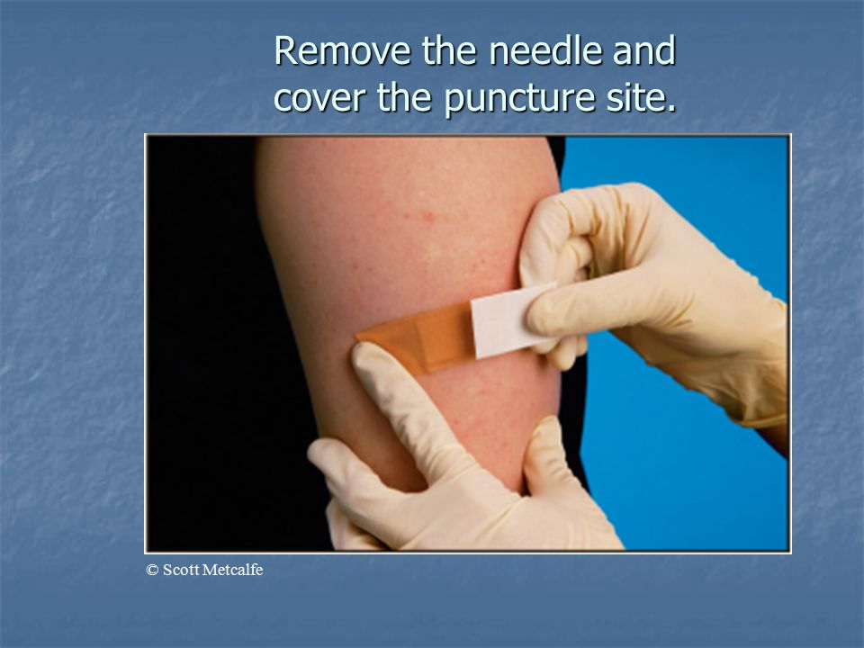 Remove the needle and cover the puncture site. © Scott Metcalfe