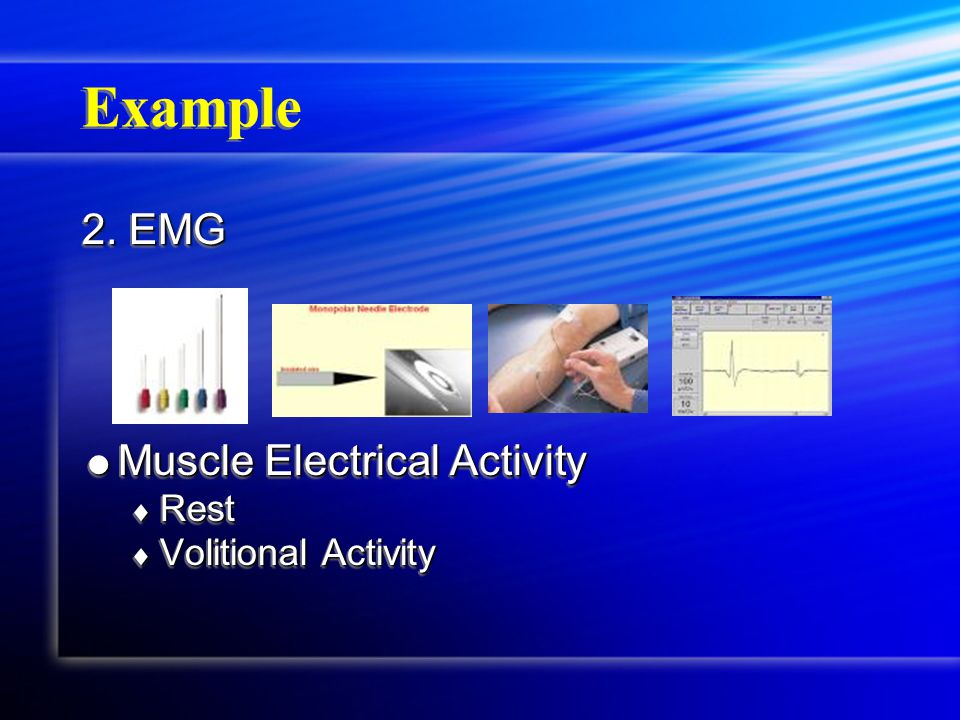 Example 2. EMG  Muscle Electrical Activity  Rest  Volitional Activity 2.