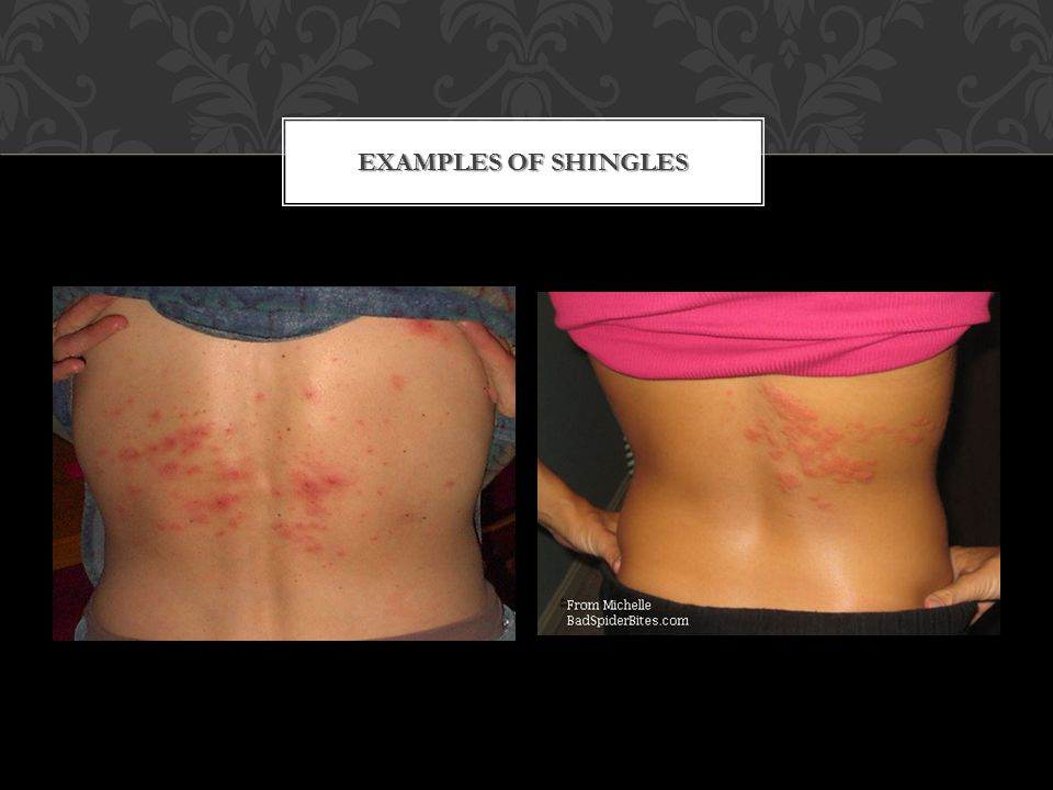 EXAMPLES OF SHINGLES