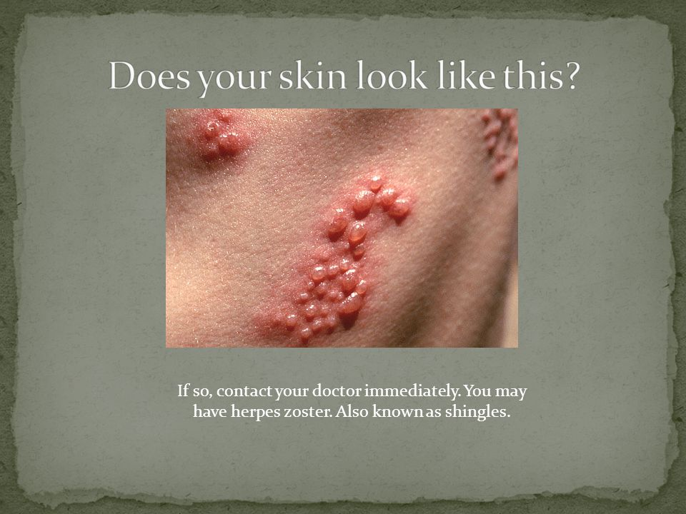 If so, contact your doctor immediately. You may have herpes zoster. Also known as shingles.