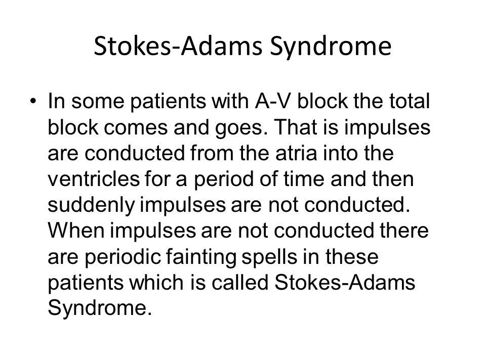 Синдром Стокса-Адамса