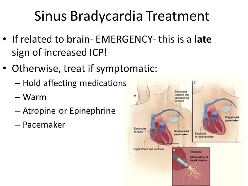 "Presentation ""Dysrhythmias. Objectives Describe basic heart ..."