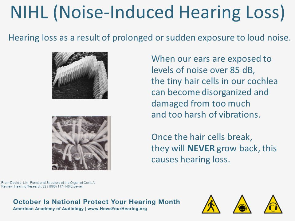 NIHL (Noise-Induced Hearing Loss) Hearing loss as a result of prolonged or sudden exposure to loud noise.
