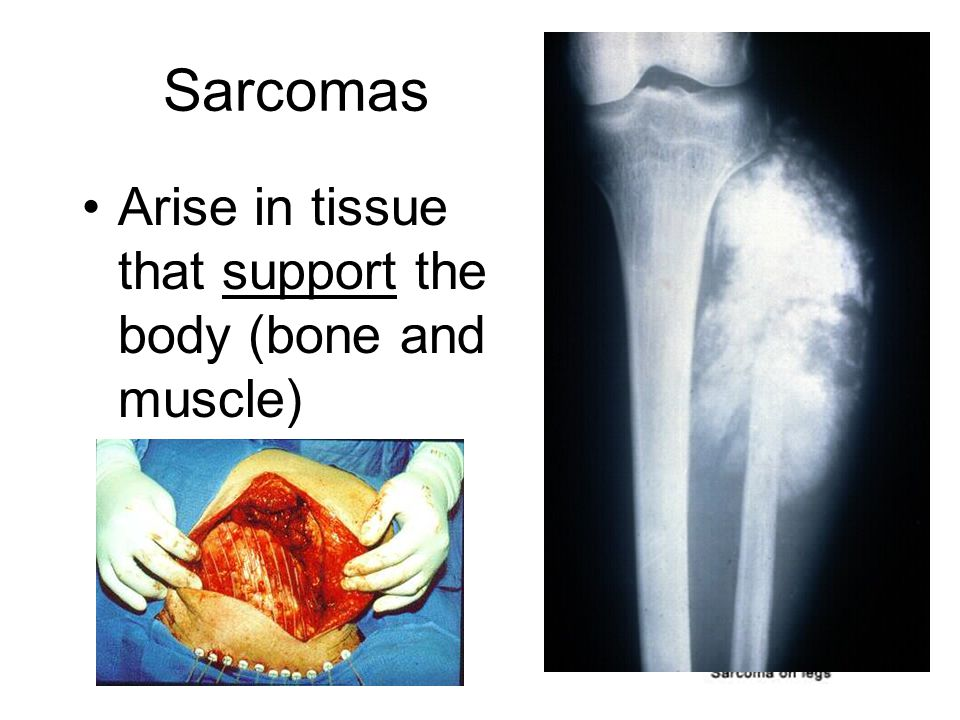 Sarcomas Arise in tissue that support the body (bone and muscle)