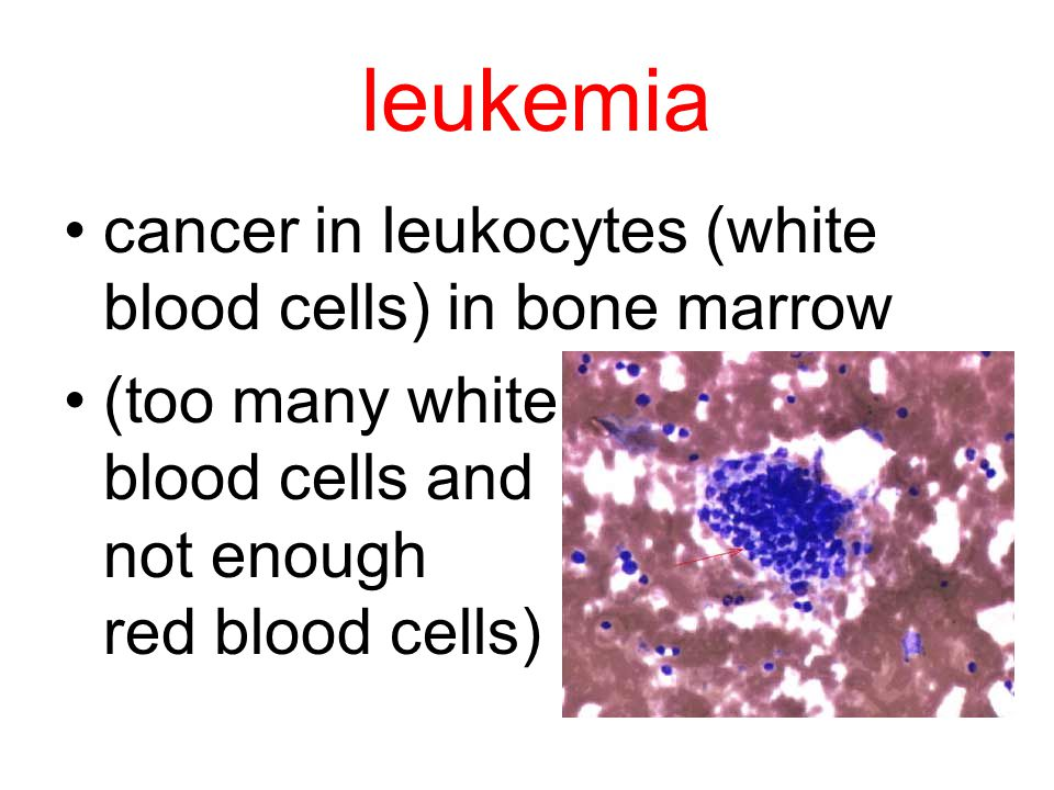 leukemia cancer in leukocytes (white blood cells) in bone marrow (too many white blood cells and not enough red blood cells)