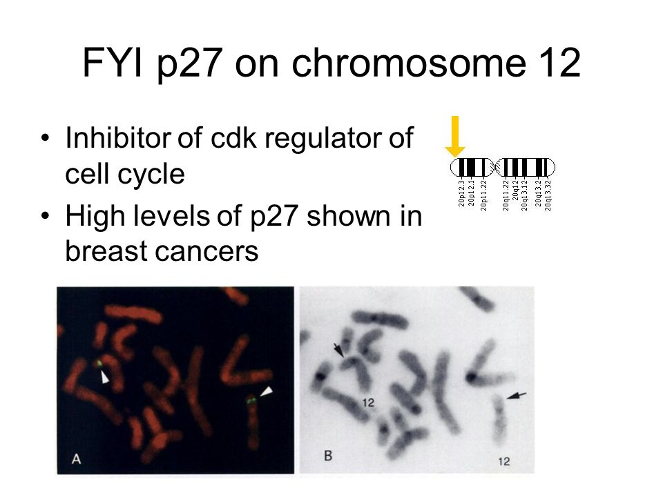 FYI p27 on chromosome 12 Inhibitor of cdk regulator of cell cycle High levels of p27 shown in breast cancers