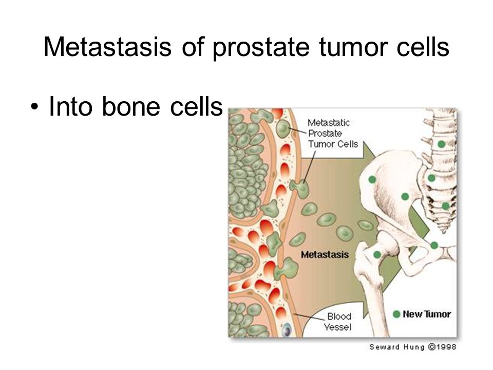 Metastasis of prostate tumor cells Into bone cells