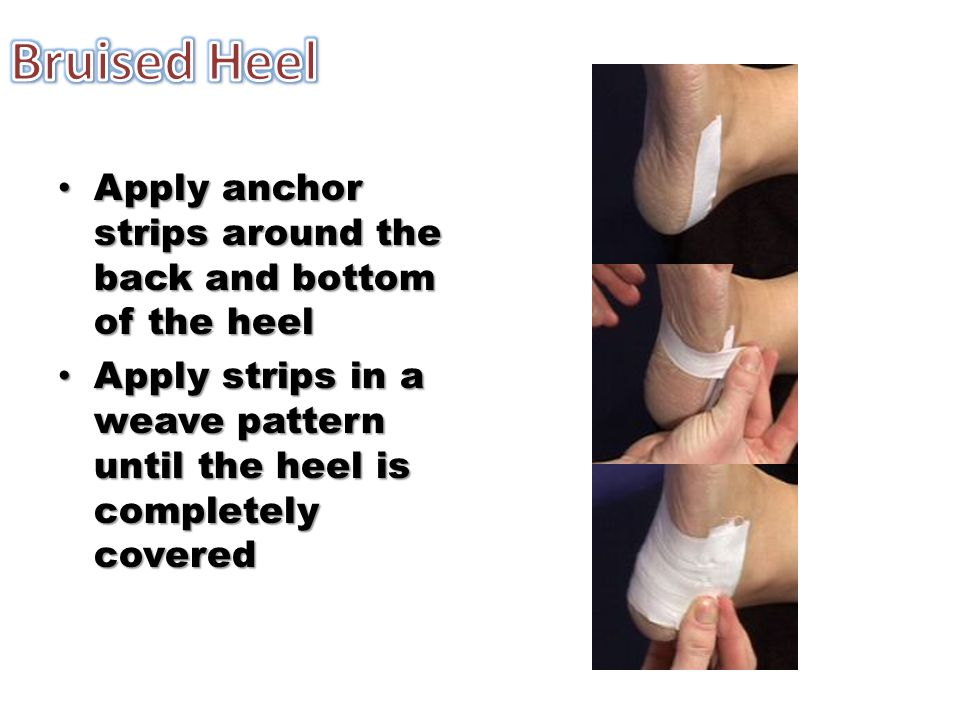 Apply anchor strips around the back and bottom of the heel Apply anchor strips around the back and bottom of the heel Apply strips in a weave pattern until the heel is completely covered Apply strips in a weave pattern until the heel is completely covered