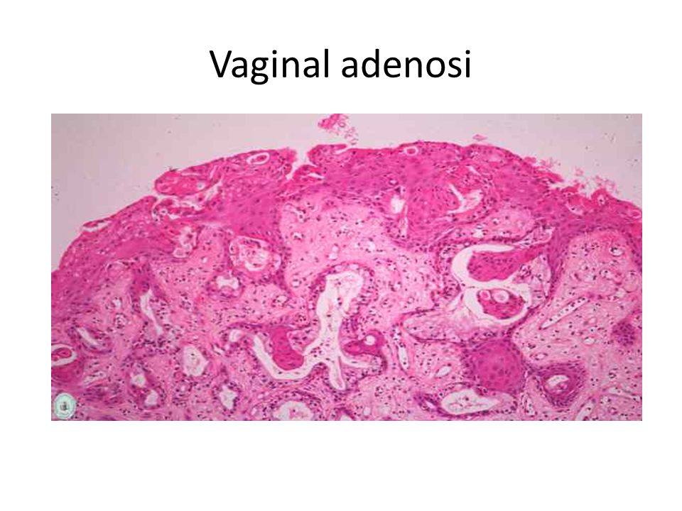 2.Gartner duct cysts of vagina -Are relatively common lesions found along the lateral walls of the vagina and derived from wolffian (mesonephric) duct rests.