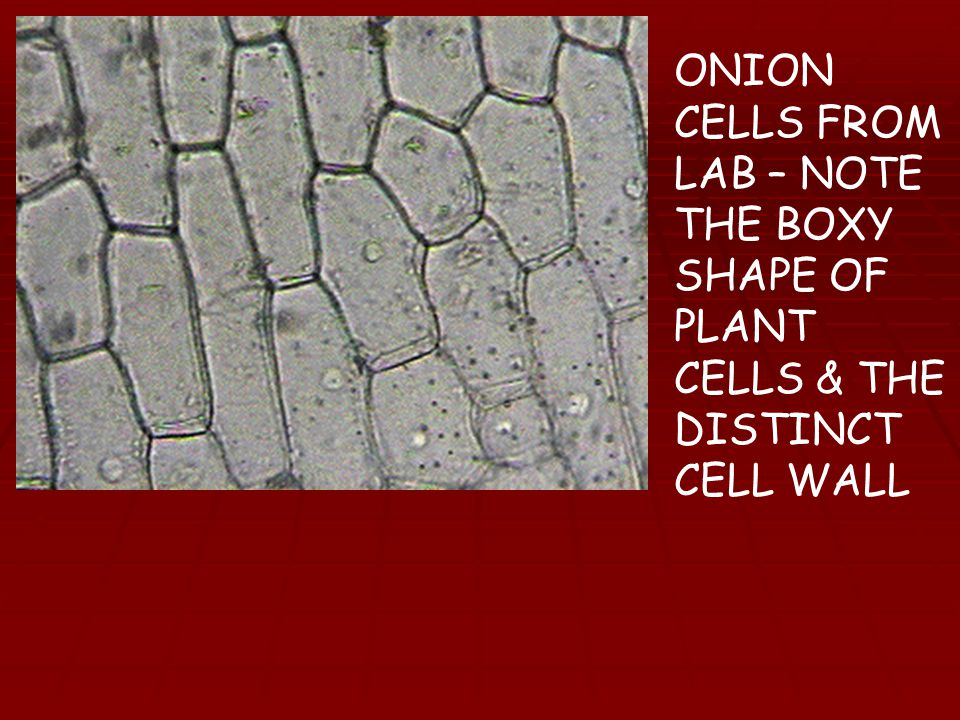ONION CELLS FROM LAB – NOTE THE BOXY SHAPE OF PLANT CELLS & THE DISTINCT CELL WALL