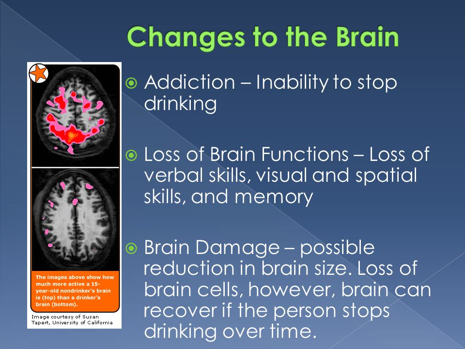  Addiction – Inability to stop drinking  Loss of Brain Functions – Loss of verbal skills, visual and spatial skills, and memory  Brain Damage – possible reduction in brain size.