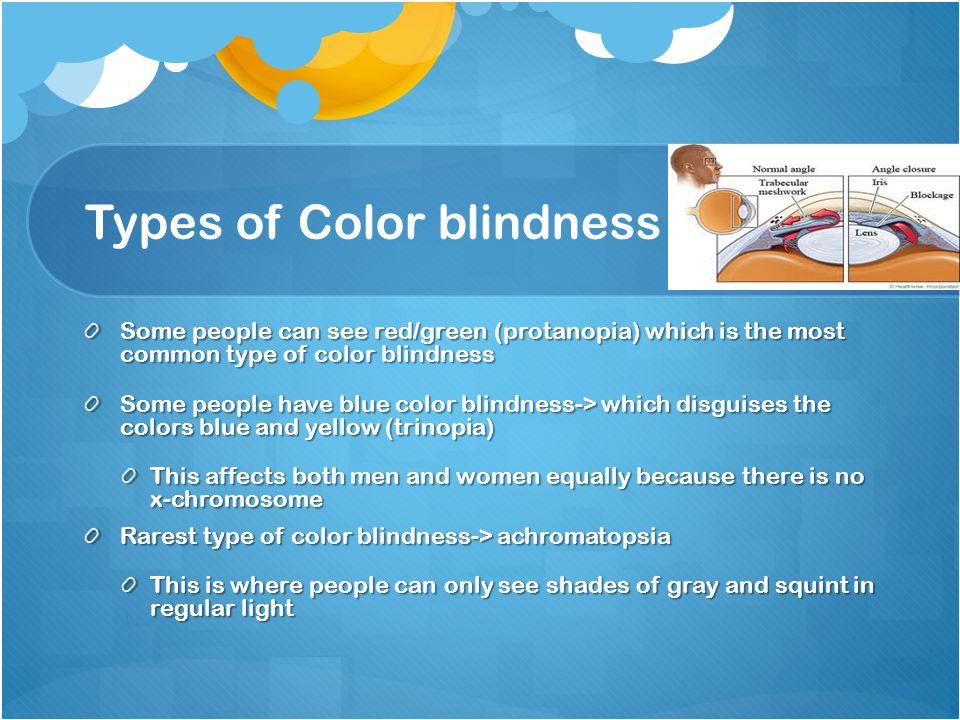 Color blindness B y : M a r e i M ü n s t e r, M o l l y S ...