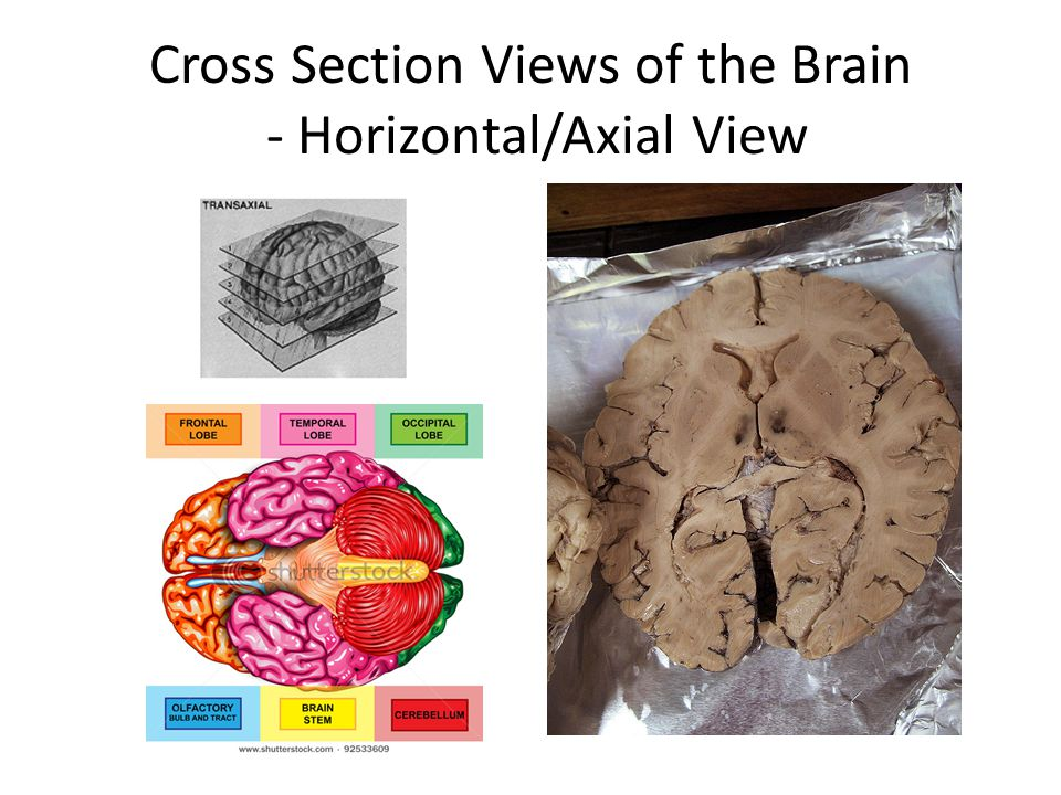 Cross Section Views of the Brain - Horizontal/Axial View
