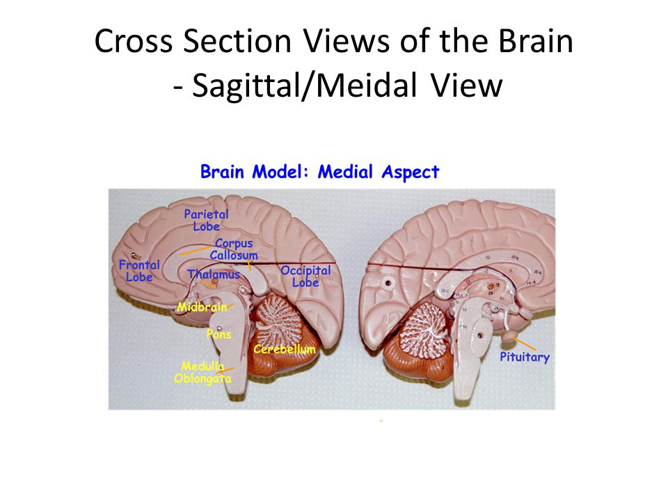 Cross Section Views of the Brain - Sagittal/Meidal View