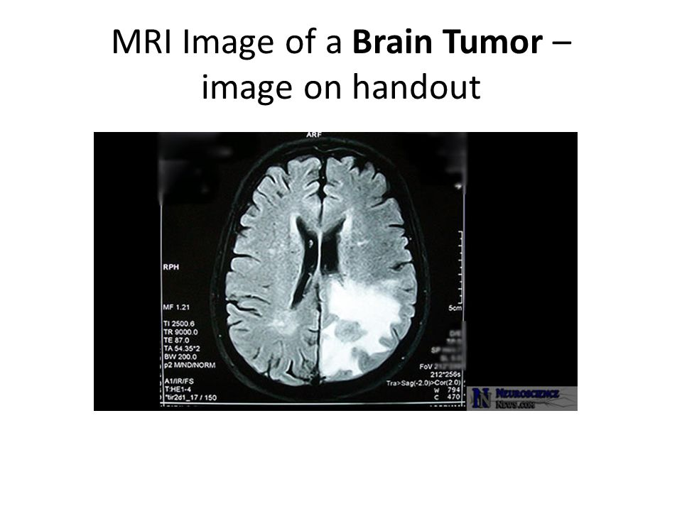MRI Image of a Brain Tumor – image on handout