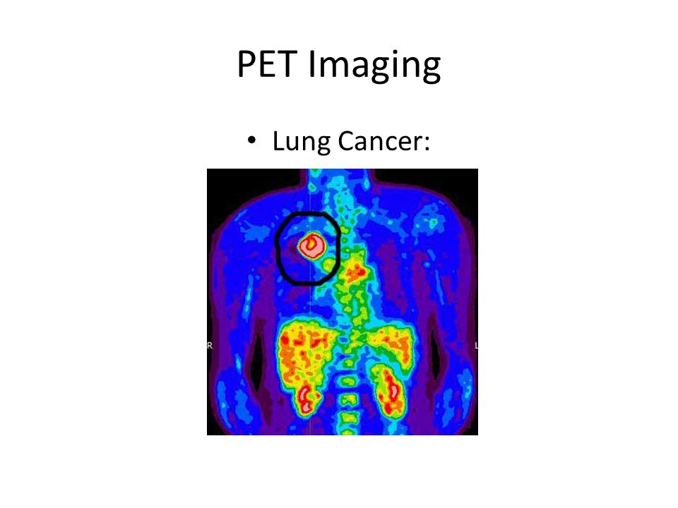 PET Imaging Lung Cancer: